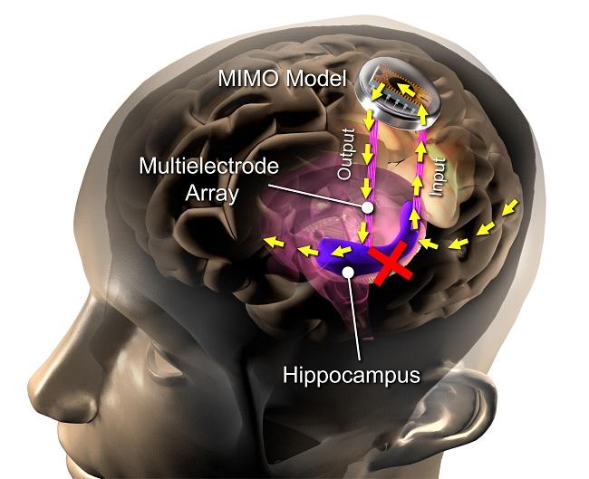 Améliorer vos capacités par un implant cérébral, ça vous ...